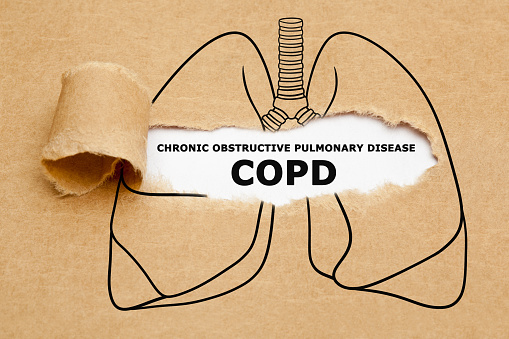 What You Need To Know About Chronic Obstructive Pulmonary Disease?