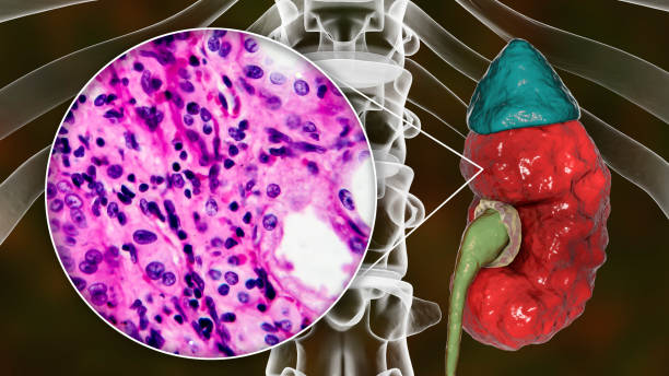 Chronic pyelonephritis, illustration and light micrograph stock photo