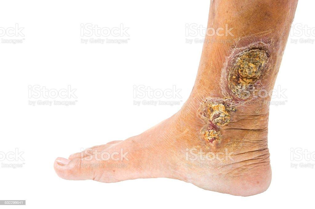 chronic venous leg ulcer stock photo