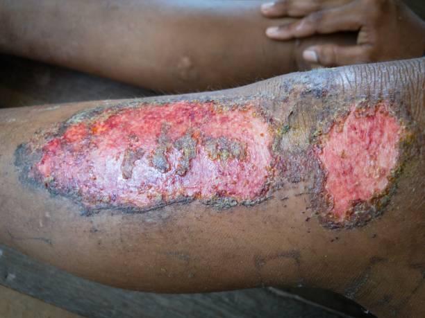 heridas crónicas en la pierna - gangrena fotografías e imágenes de stock