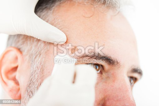istock Chryotherapy used to Removed an Aged Spot 693843964