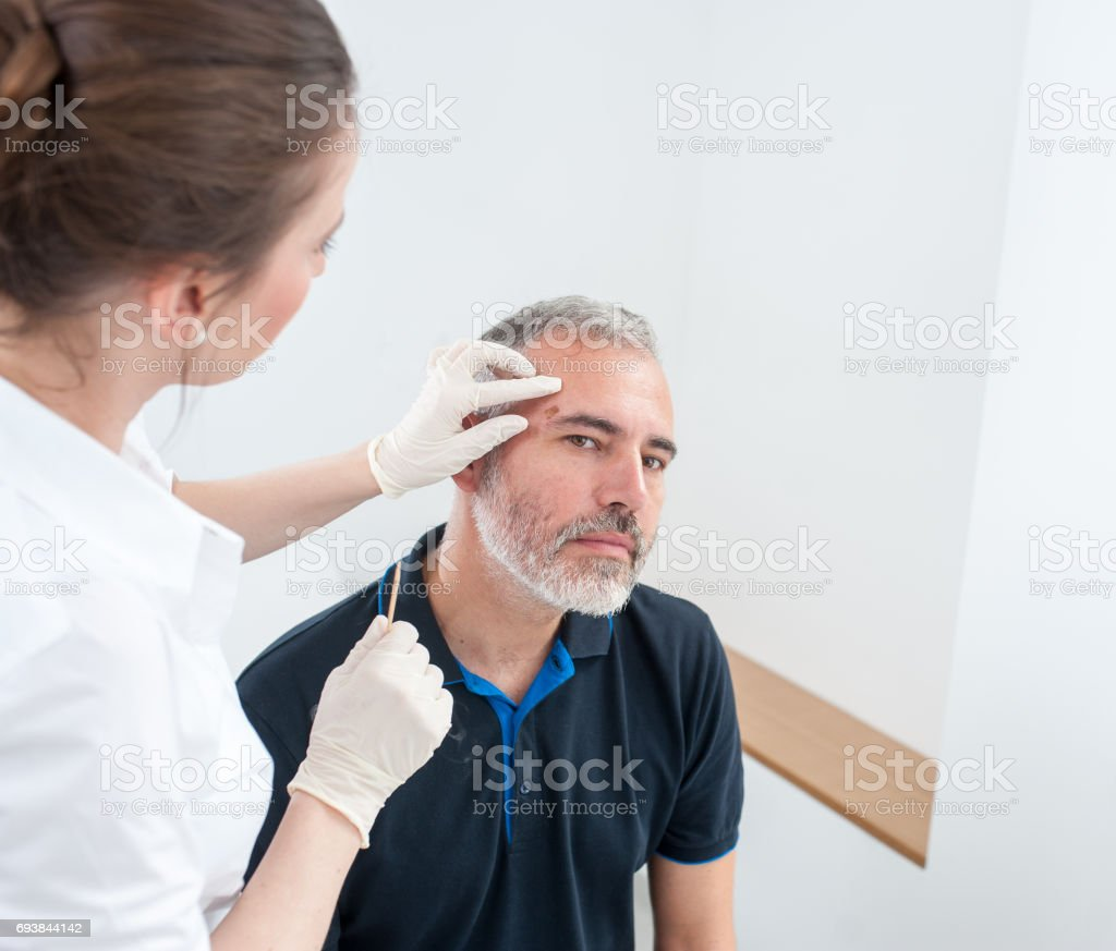 Chryotherapy used to Removed an Aged Spot stock photo