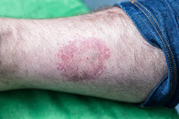 Kreisförmige Bulls Eye Tick Bite Hautausschlag – Foto