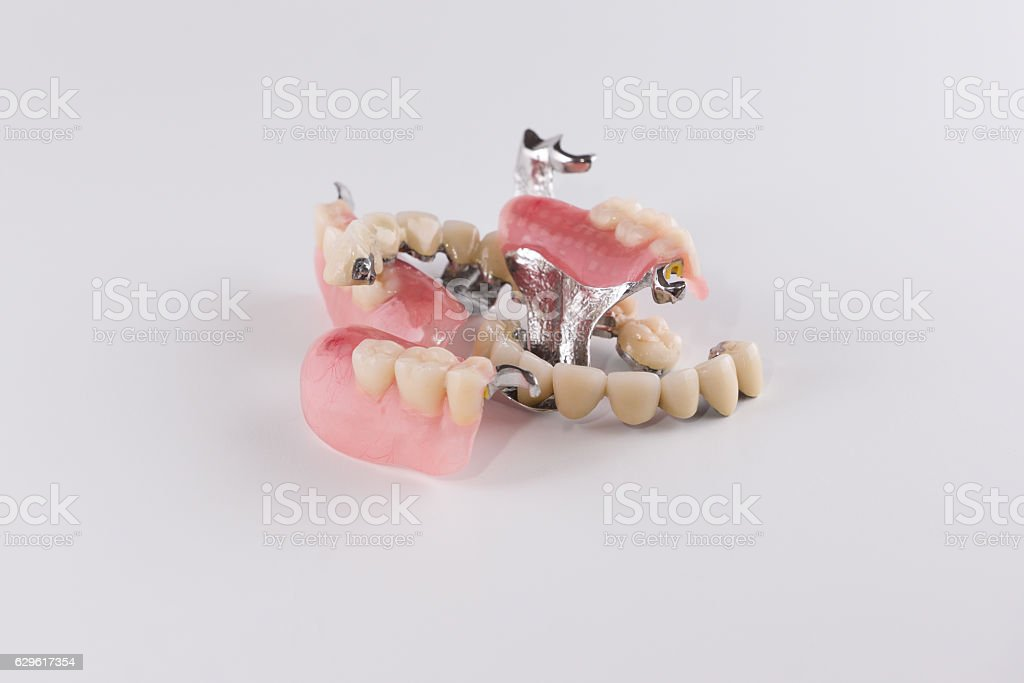 Clasp prosthesis with attachments fixing ceramic crowns stock photo