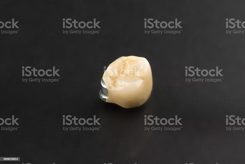 Clasp prosthesis with lock fixation stock photo