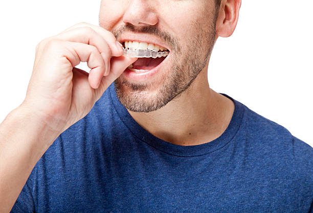 Klare Zahnspange Mann – Foto