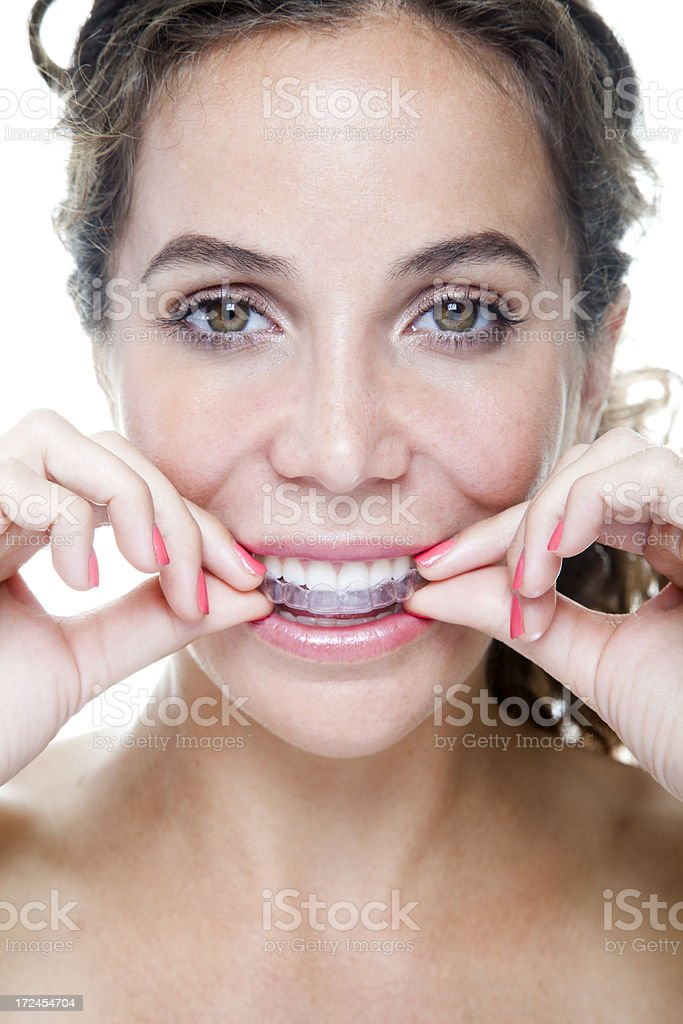 Clear Braces royalty-free stock photo