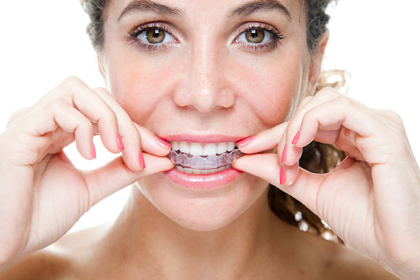 Clear Braces stock photo