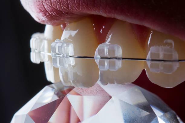 clear braces stock photo