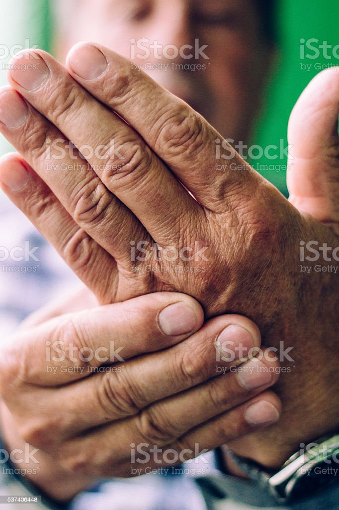 Clenched painful hands stock photo