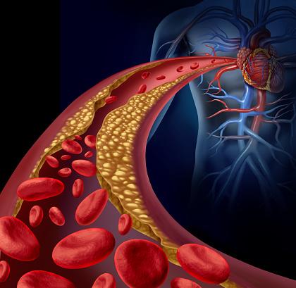istock Clogged Artery 498686795