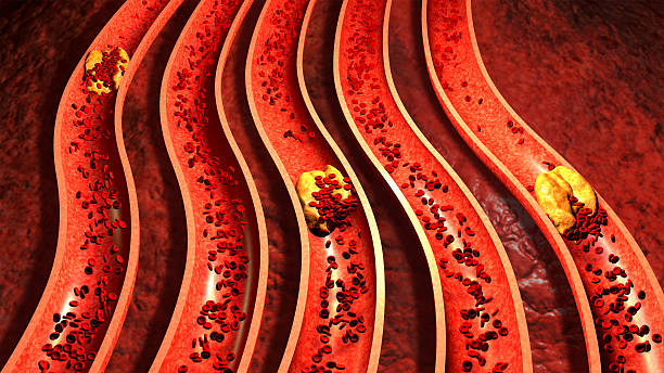 Clogged Artery with cholesterol plaque stock photo