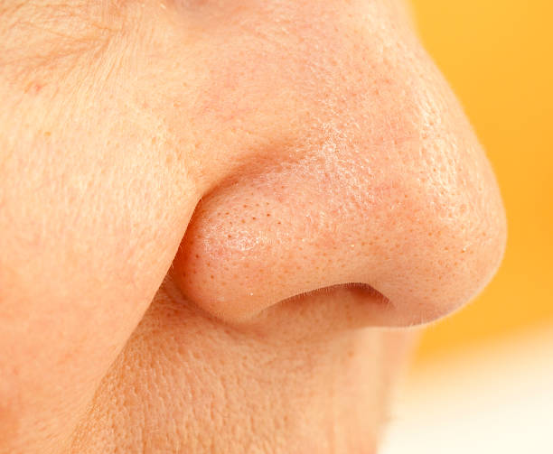 clogged pores on nose stock photo