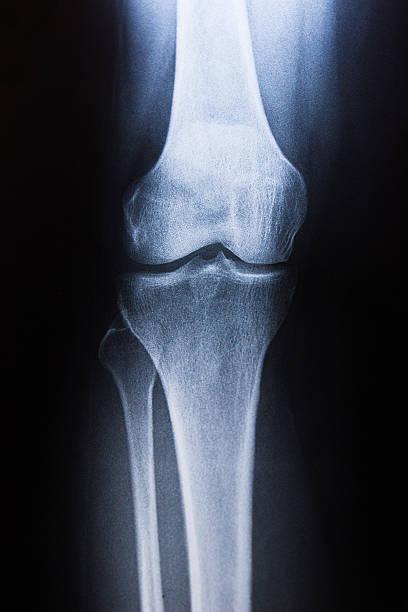 close of view of human knee - knäskål bildbanksfoton och bilder
