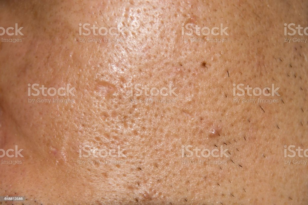 Close up Acne , Acne holes welded on face stock photo