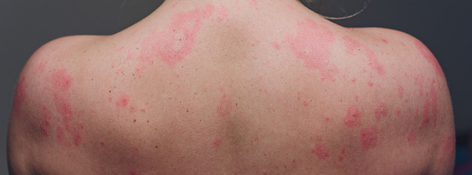 istock Close up Allergy rash, Around Back view of human with dermatitis problem of rash ,Allergy rash and Health problem. 1160580735