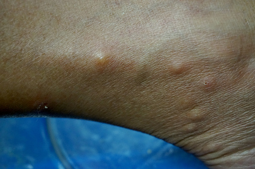 close up around ankle of woman with rash cause from bed bugs bite