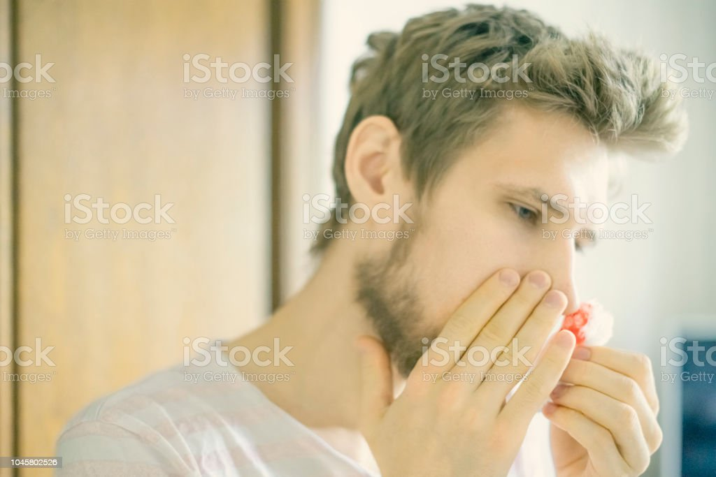 close up bearded  man portrait suffer from nose bleed using wadding tampon f stock photo