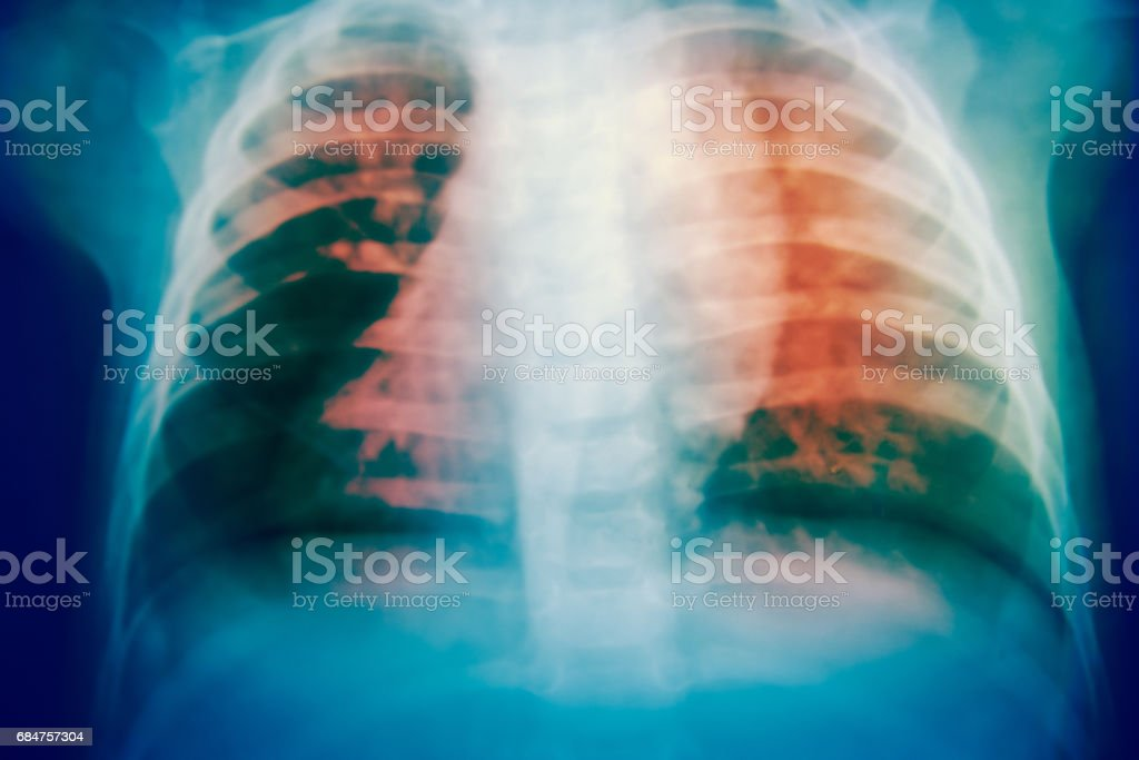 Close up bone  x-ray medical science background - foto de stock