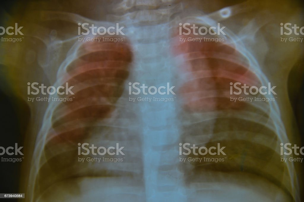 Close up chest child   x-ray medical science background foto de stock royalty-free