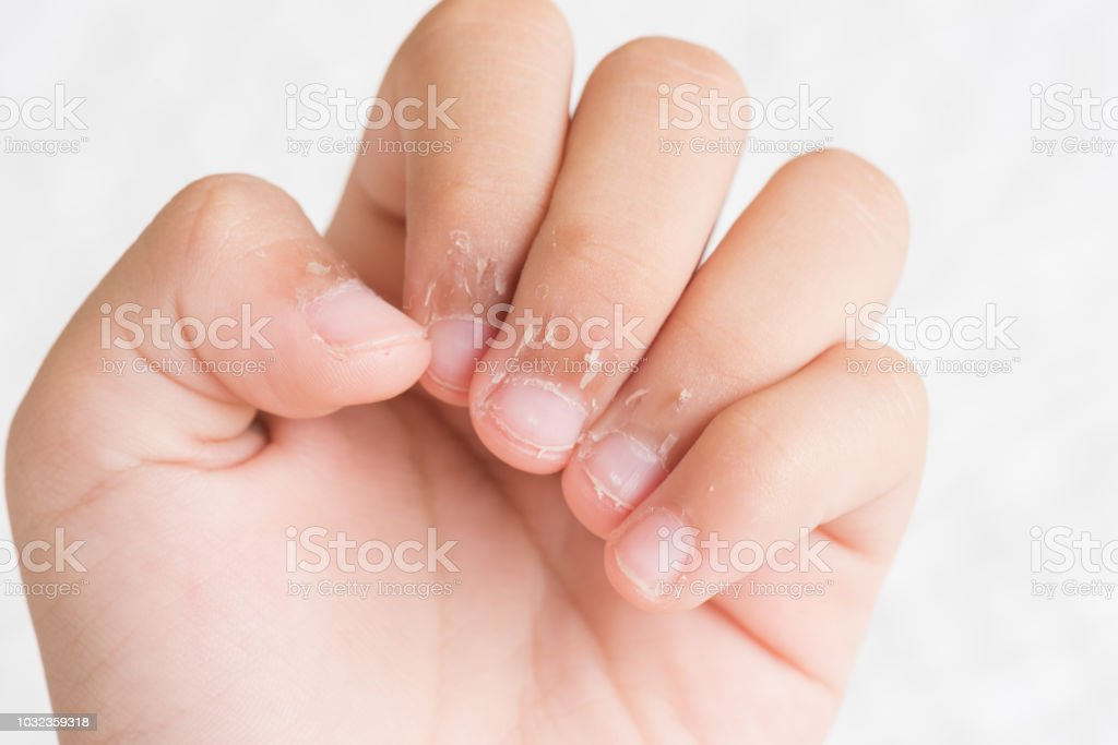 Close Up Childs Fingers With Dry Skin Eczema Dermatitis Medicine And Health Care Concept Stock Photo Download Image Now Istock