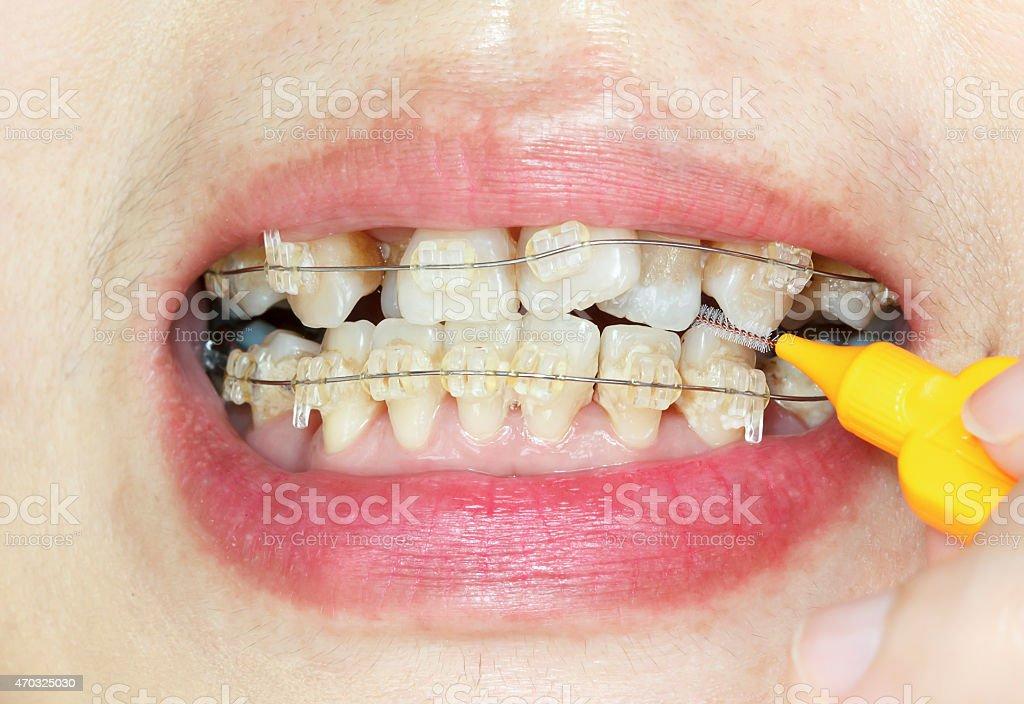 Primer plano crooked dientes con aparatos de ortodoncia, interdental cepillar - foto de stock