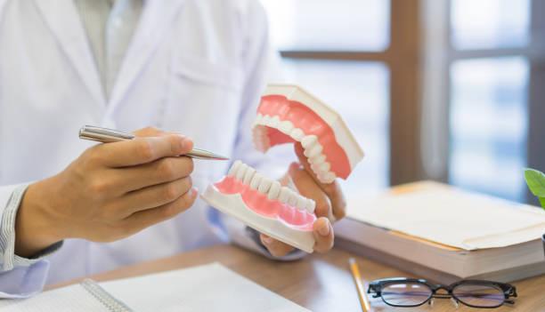 dicht tandarts hand houden tanden model gebit voor leggen juiste behandeling binnen orale en informatie van tandheelkundige kennis te geven aan patiënt bij kliniek kantoor, tandheelkunde medische concept - tandvleesontsteking stockfoto's en -beelden