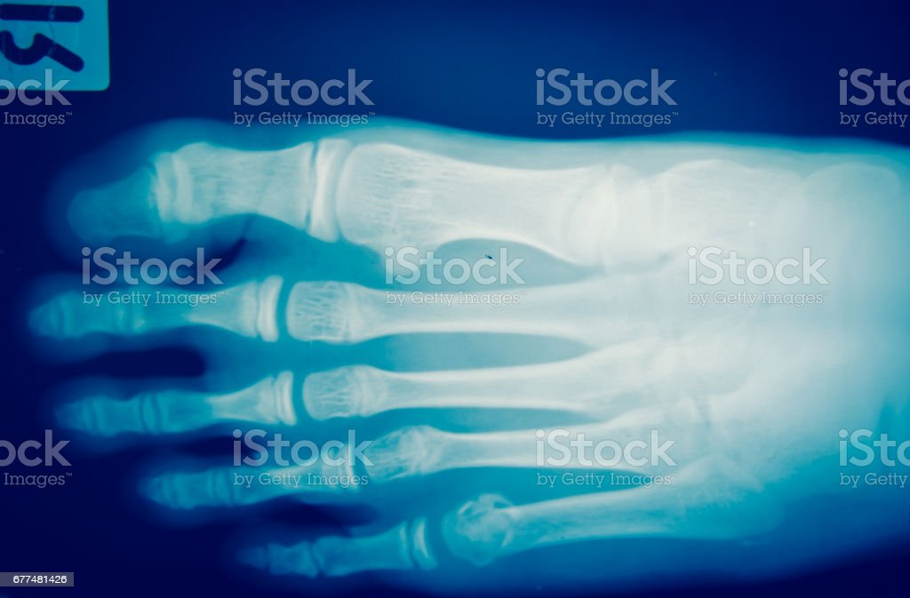 Close up foot bone  x-ray medical science background stock photo