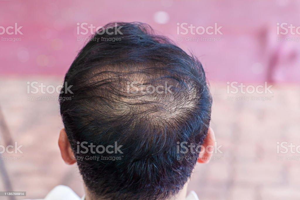 Close Up Hair Loss Thinning Hair And Scalp Issue Hair Loss ...