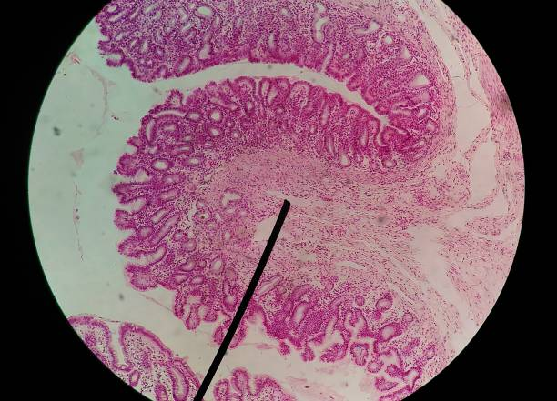close up human cells with microscope in cytology lab. - cytology stock pictures, royalty-free photos & images
