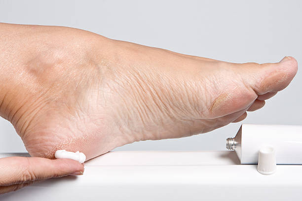 Close up image of a woman applying moisturizer to a dry foot stock photo