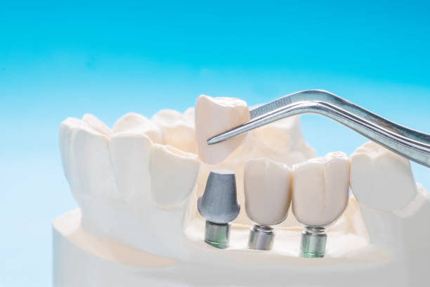 nahaufnahme implantat und prothetik. - zahnimplantat stock-fotos und bilder