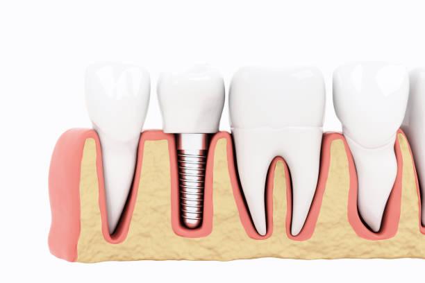 Schließen Sie Isolate Process Implants Abschnitt auf weißem Hintergrund. 3D-Rendern – Foto