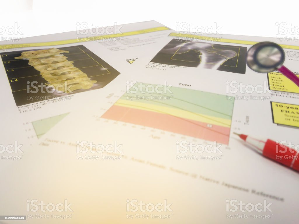 Close up Lumbar spine and hip Bone density report.too soft and blurry image. stock photo