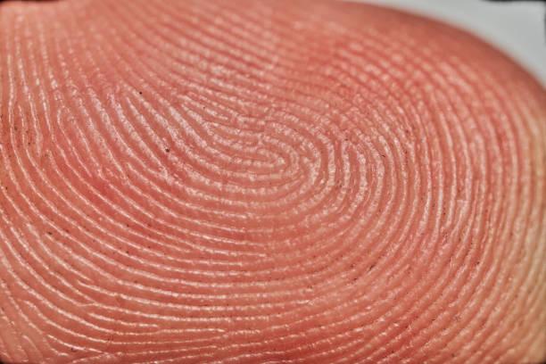Schließen Sie herauf Makro Bild eines menschlichen Fingers. – Foto