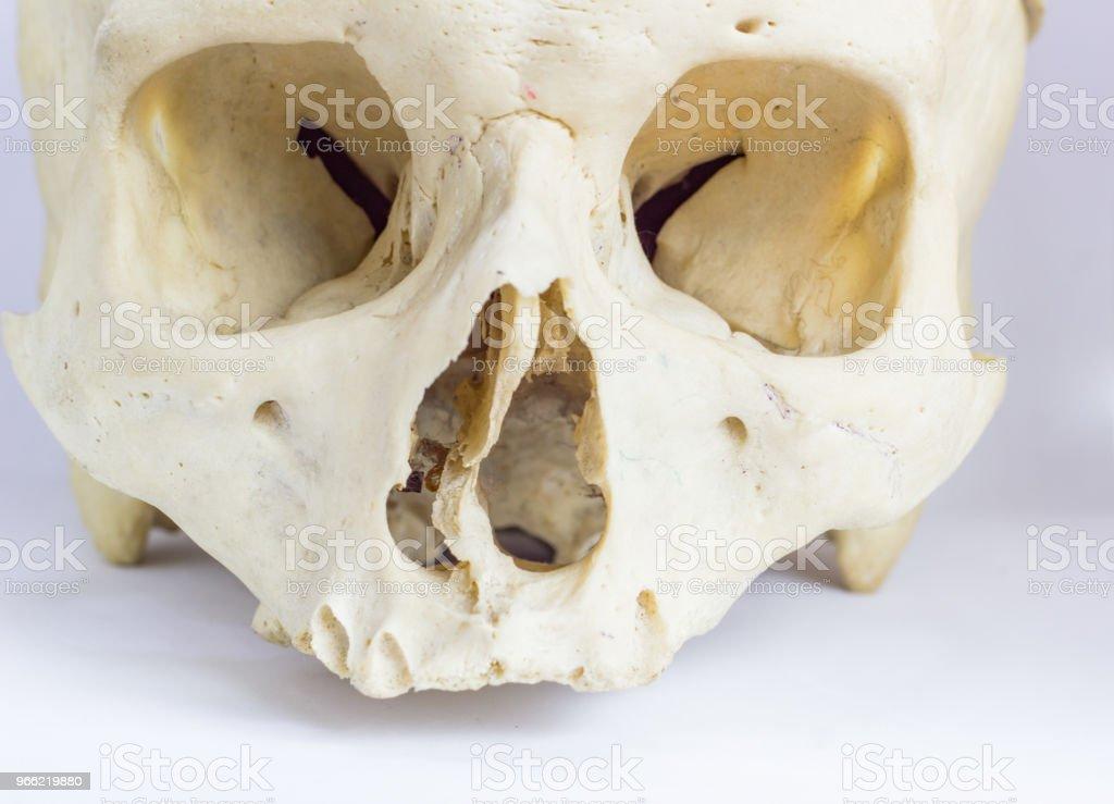 Close Up Macro View Of Human Skull Bone Showing The Anatomy Of Nasal ...
