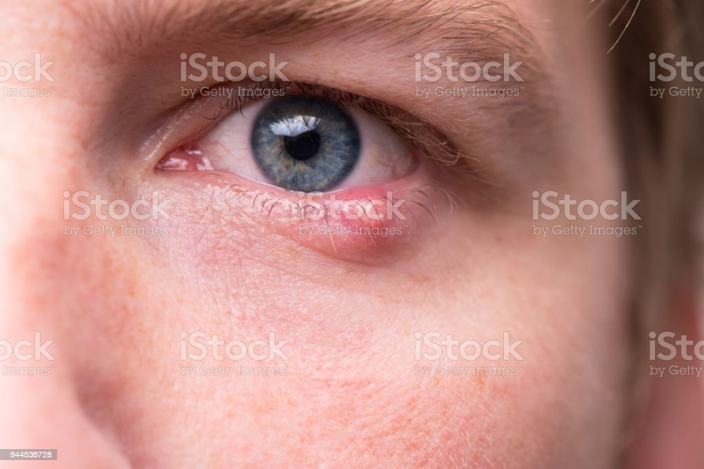Close up male's face with infected lower eyelid. stock photo