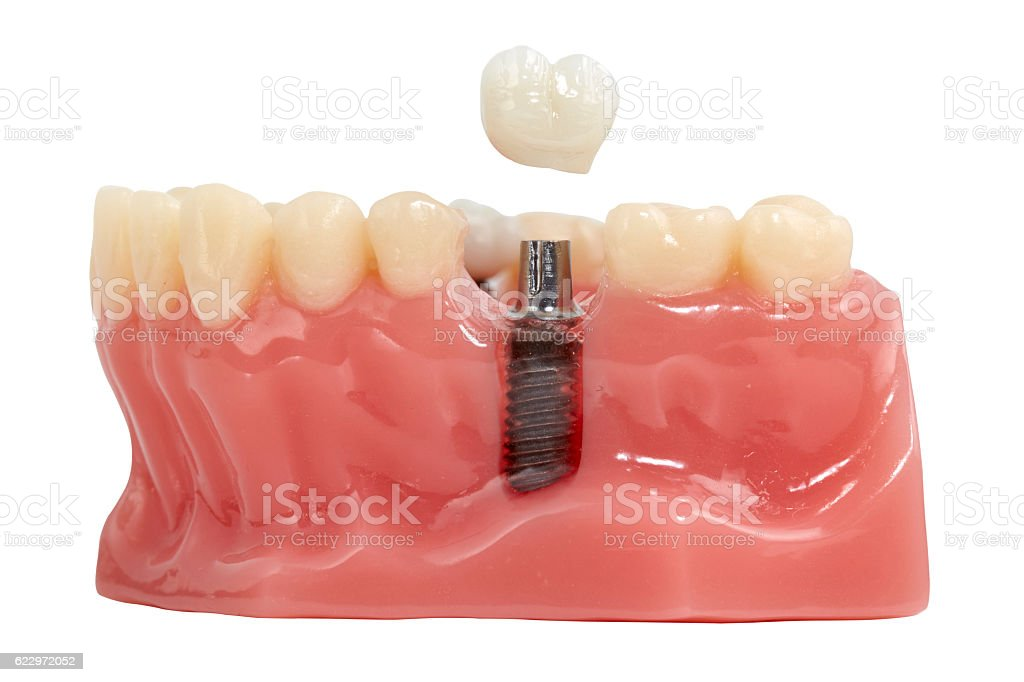 Close up of a Dental implant model. stock photo