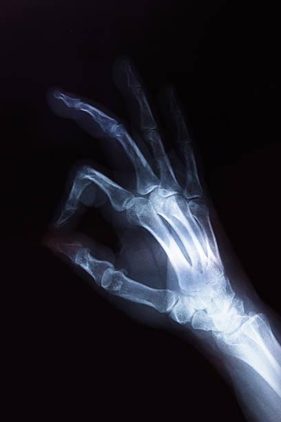 nahaufnahme der menschlichen hand das röntgenbild - skelett hand stock-fotos und bilder