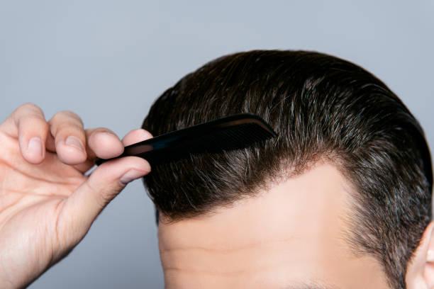 a gros plan de la main de l'homme, peigner les cheveux sans squames - peigne photos et images de collection
