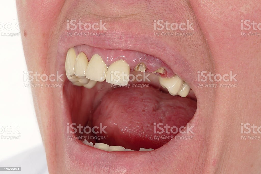 A close up of a mouth with broken teeth stock photo