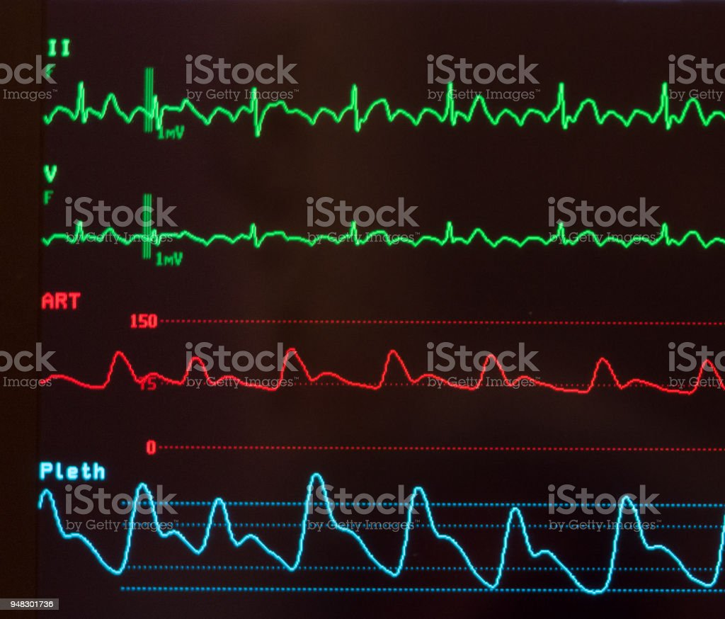 Close Up Of An Ecg With Atrial Flutter Stock Photo
