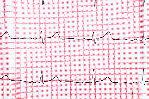 istock Close up of an electrocardiogram in paper form 685218088