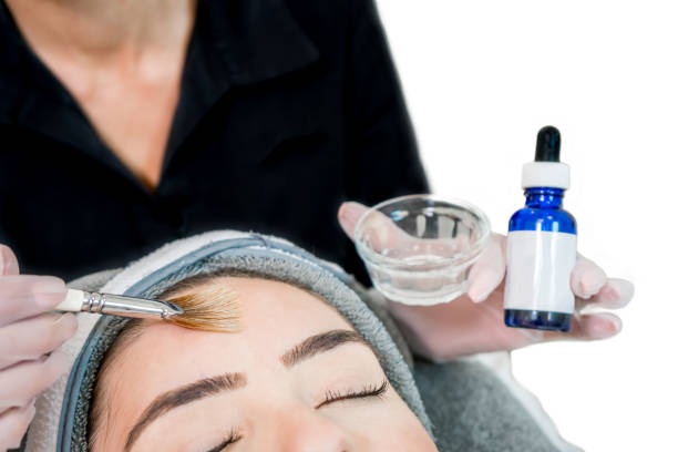 close up of beautician (cosmetologist) applying chemical peel treatment on patient in a beauty spa, for skin rejuvenation, complexion and acne beauty treatments. - chemical peel stock pictures, royalty-free photos & images