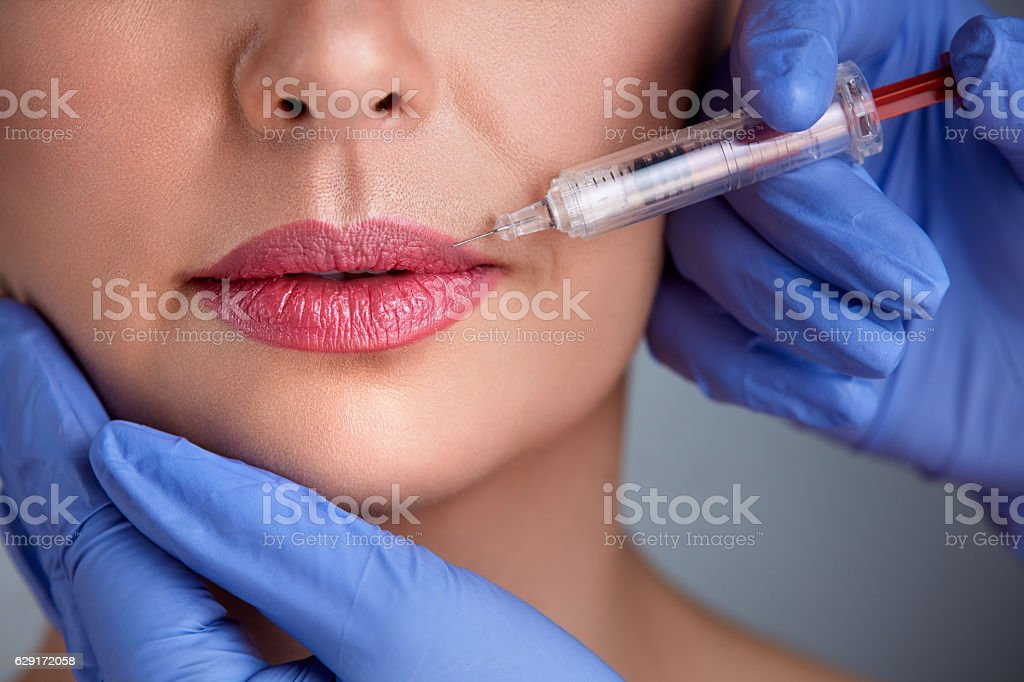 Close up of correction lips stock photo