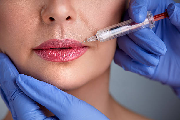 Close up of correction lips stock photo
