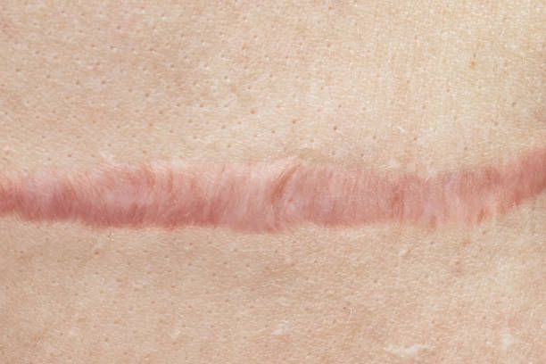 close up of cyanotic keloid scar caused by surgery and suturing, skin imperfections or defects. hypertrophic scar on skin, dermatology and cosmetology concept - defects stock pictures, royalty-free photos & images