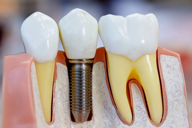 Close up of dental model with implantation Close up of dental model with implantation implant stock pictures, royalty-free photos & images