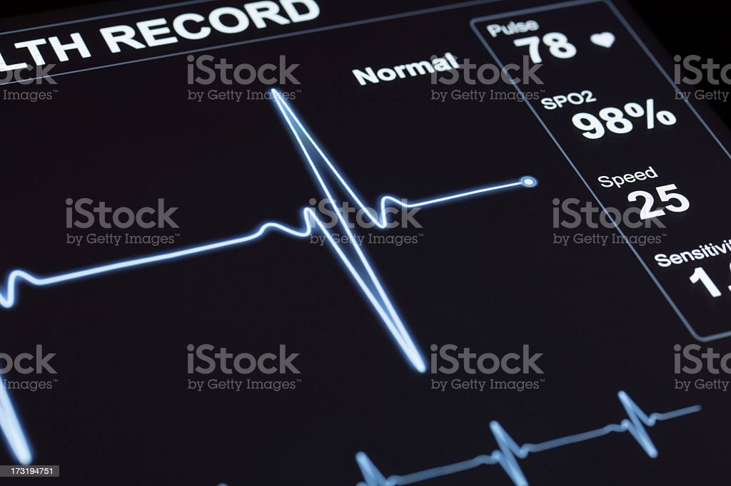 Close up of Heart monitor lines stock photo