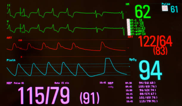 Close Up of Heart Monitor with Paced Rhythm and Sinus Bradycardia stock photo